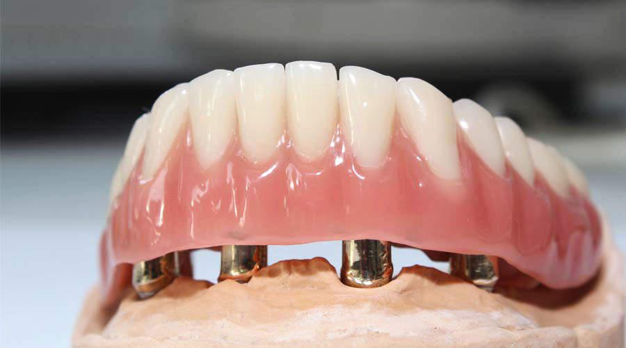 Joachim stoll dentallabor